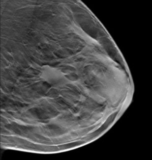 Breast scan image