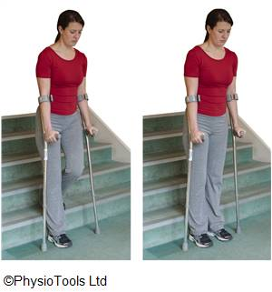 Prehab exercises for using stairs and crutches